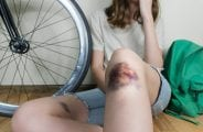 Female person sitting on the floor with bruised leg after falling down her bike during cycling or commuting