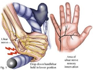 Cyclists_palsy_ulnar_involvement