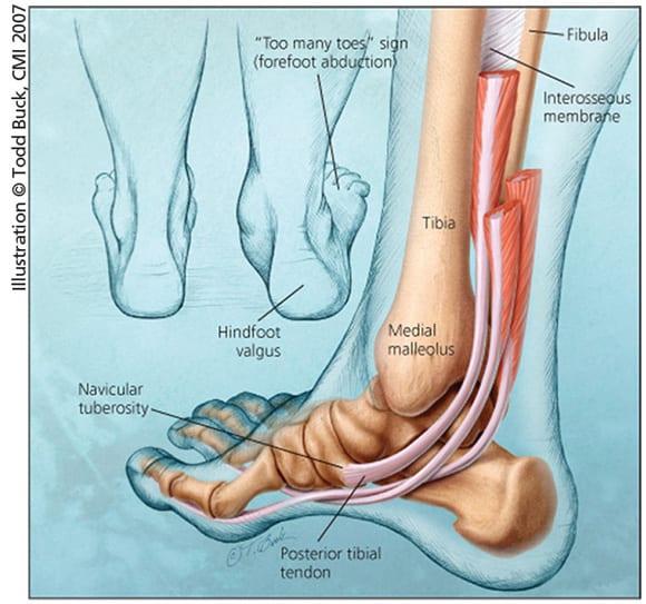 JMM_posterior_tibial_tendon_insufficiency_foot_diagram_thumb